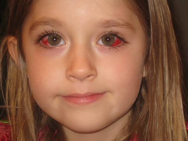 Everything You Need To Know About Strabismus